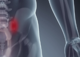 Sacroiliac joint pain infographic